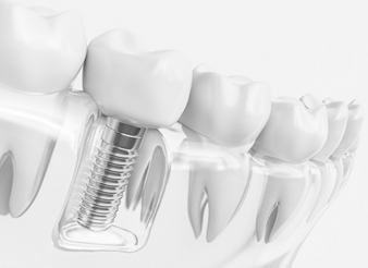 dental implant in Lewisville