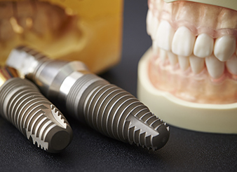 Model smile and dental implants