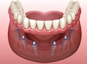 implant-retained dentures in Lewisville